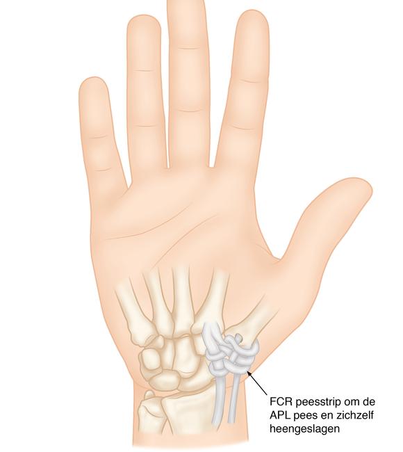 versleten duim
